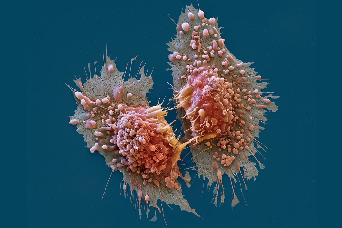 10 Reasons Why You Might Face Cancer