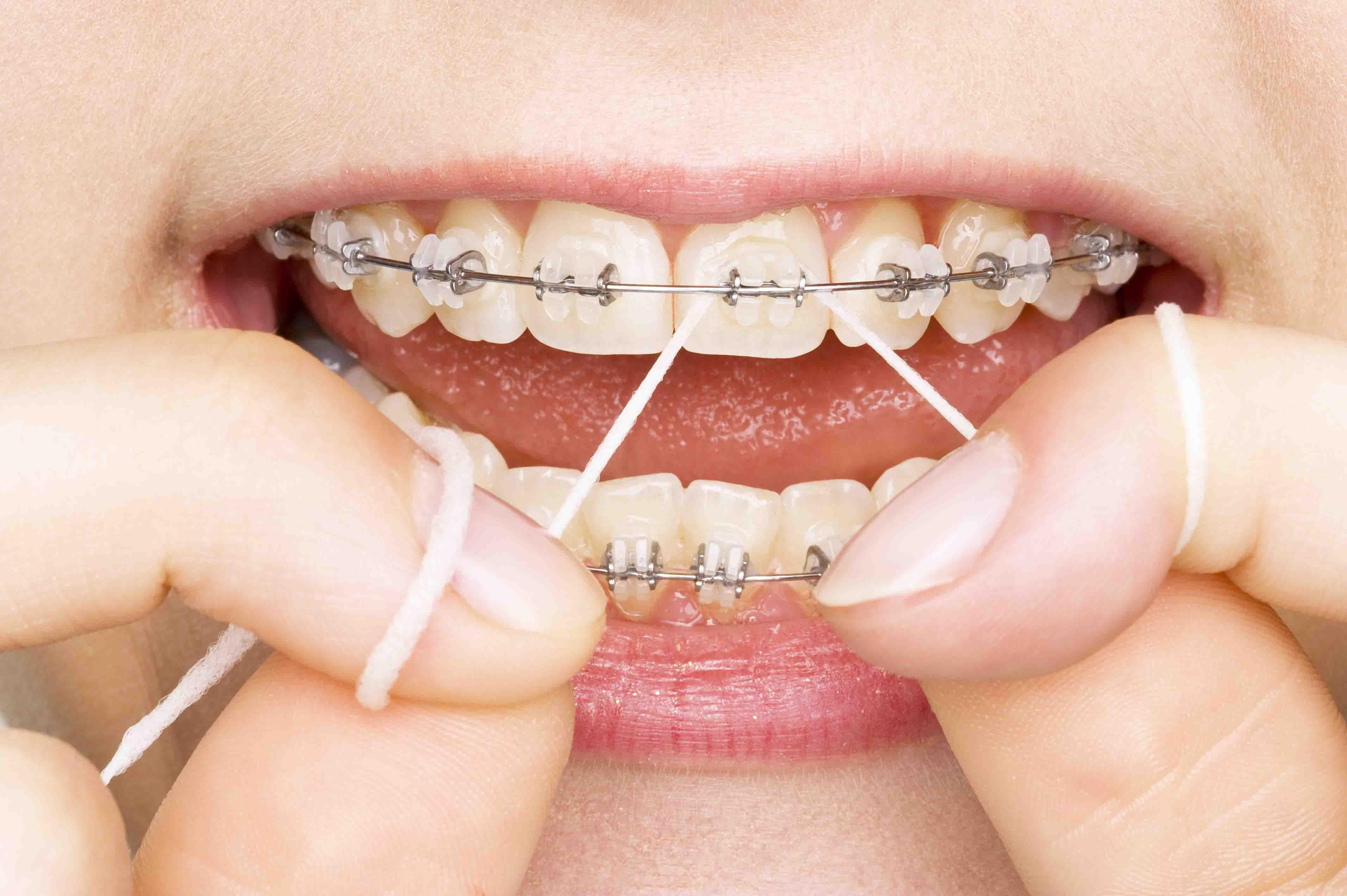 Get Beautiful Set of Teeth by Dental Implant Treatment in Ahmedabad